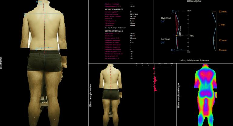 Scanner posturale 3D