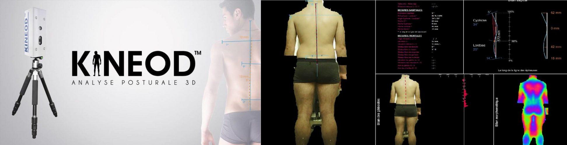 kineod-analyse-posturale3d